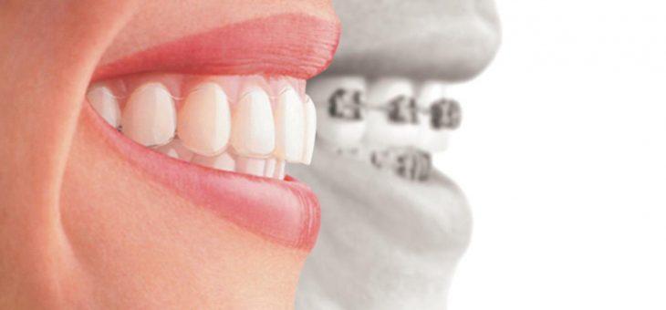 Causas del dolor con la ortodoncia