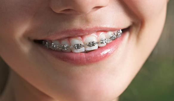 Blanqueamiento dental: ¿antes o después de la ortodoncia?