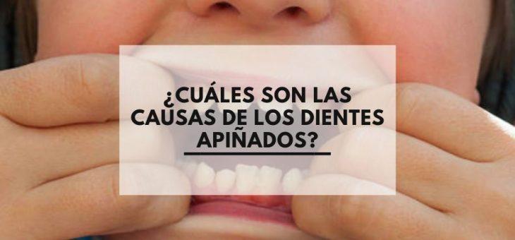 ¿Cuáles son las causas de los dientes apiñados?