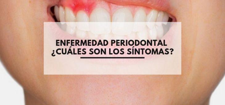 Enfermedad Periodontal ¿Cuáles son los síntomas ?