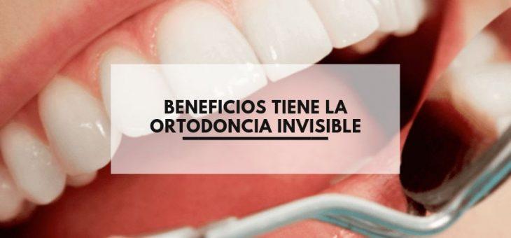 Beneficios tiene la ortodoncia invisible