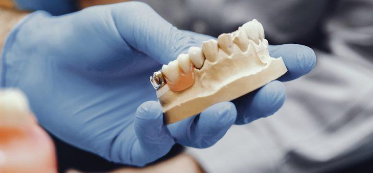 3 preguntas sobre el implante dental